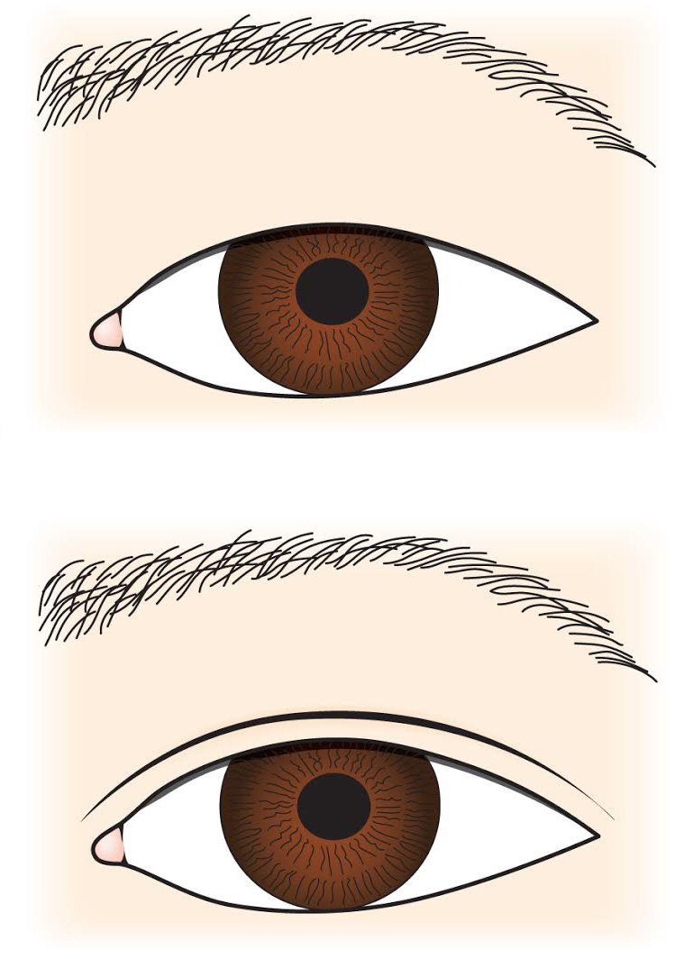 Unique features of the Asian eye shape
