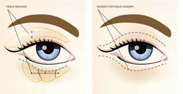 How is the procedure performed blepharoplasty
